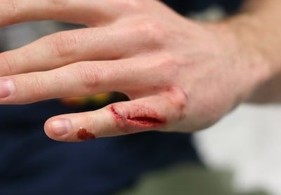 Lacerations of the finger can bleed quite profusely because of digital ...