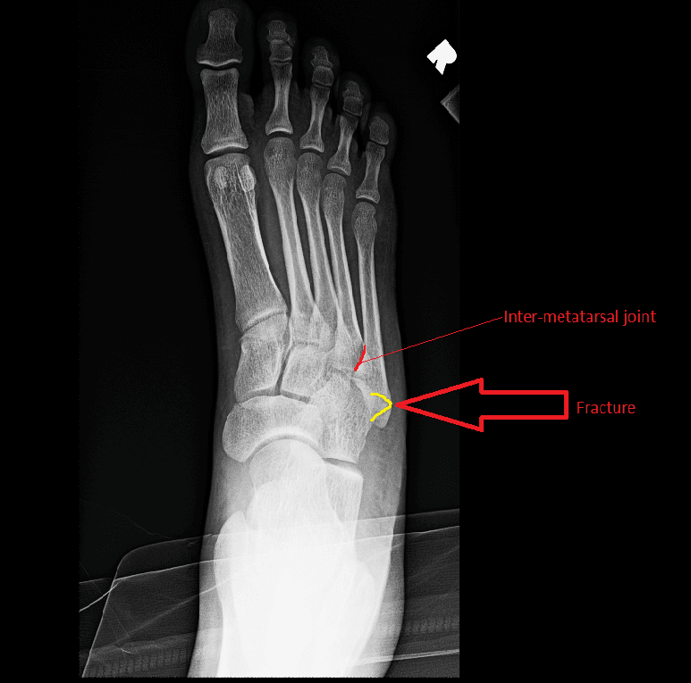 Diagnose on Sight: Fifth Metatarsal Fractures