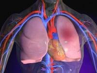 Subsegmental Pulmonary Embolisms (SSPE) are Important