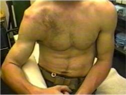 shoulder injection steroids