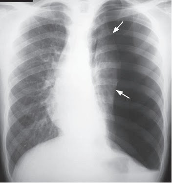 Left hemothorax x ray