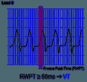 r wave peak time rwpt in lead ii one simple step to differentiate