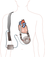 191px-Ventricular_assist_device
