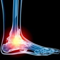 Lateral Ankle Injuries in Children
