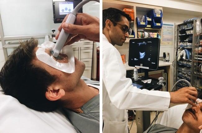 Ocular-ultrasound-setup
