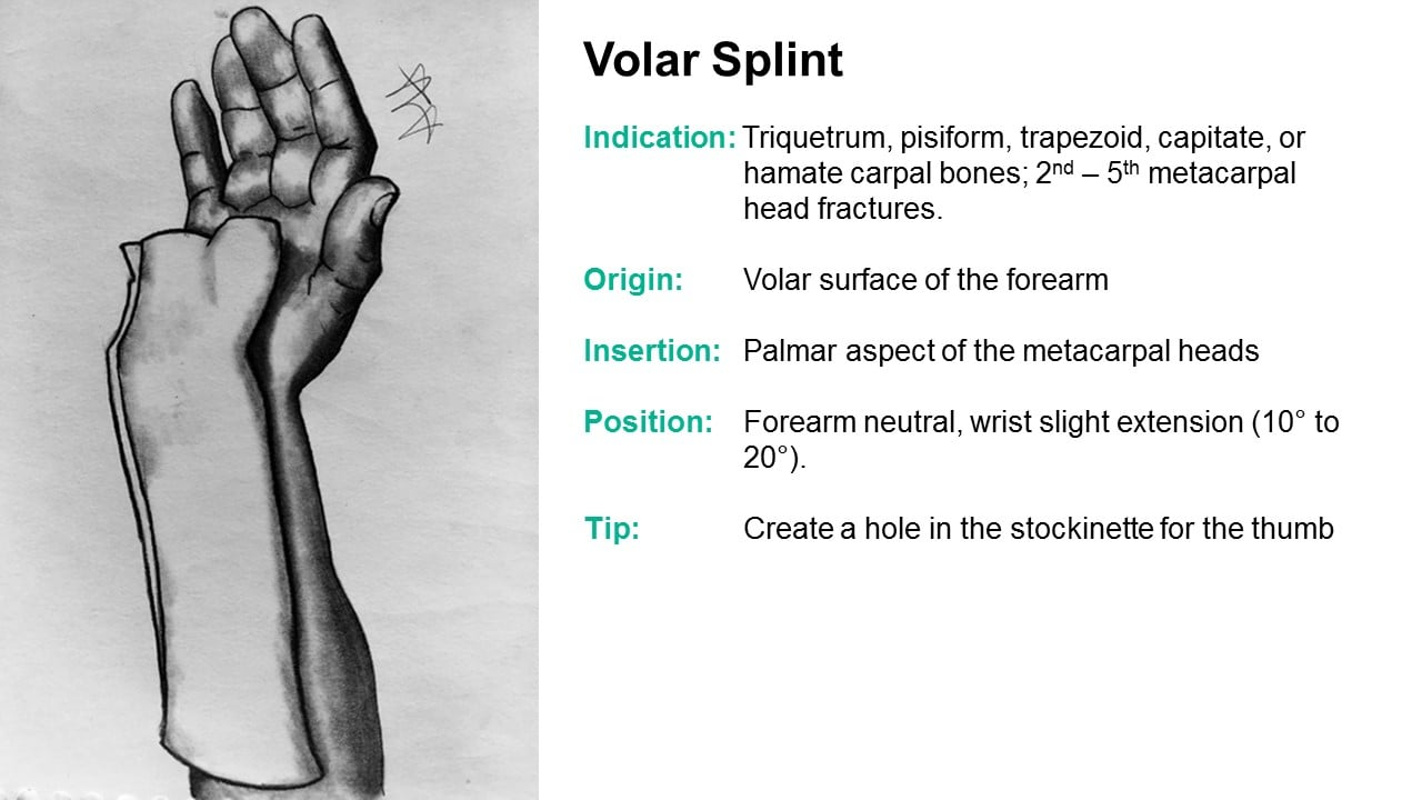 Common Upperextremity Splints And Their Indications T