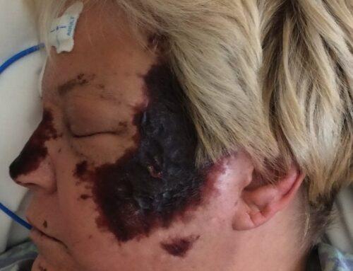 SAEM Clinical Image Series: Facial Burn