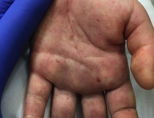 SAEM Clinical Image Series: Tick Bite