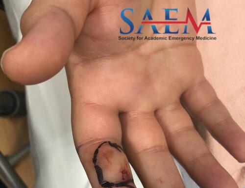 SAEM Clinical Image Series: Juvenile Snake Bite
