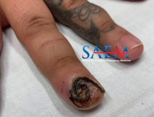 SAEM Clinical Image Series: Finger Pain