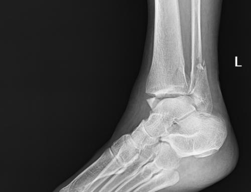 SplintER Series: Open Fracture
