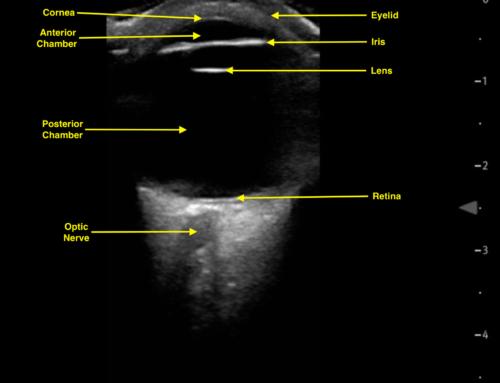 PEM POCUS Series: Pediatric Ocular Ultrasound for Optic Nerve Evaluation