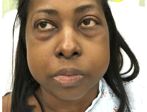 SAEM Clinical Image Series: Facial Edema