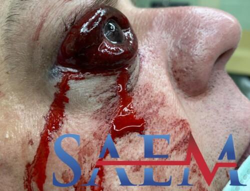 SAEM Clinical Image Series: Traumatic Swollen Eye