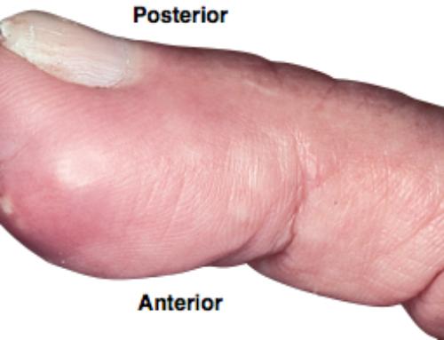SplintER Series: Case of the Swollen Finger