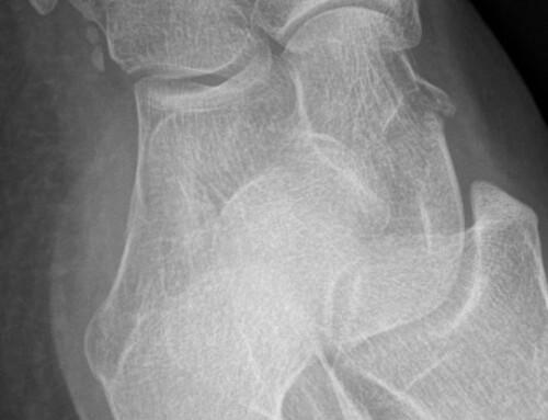 SplintER Series: Pedal to the Metal