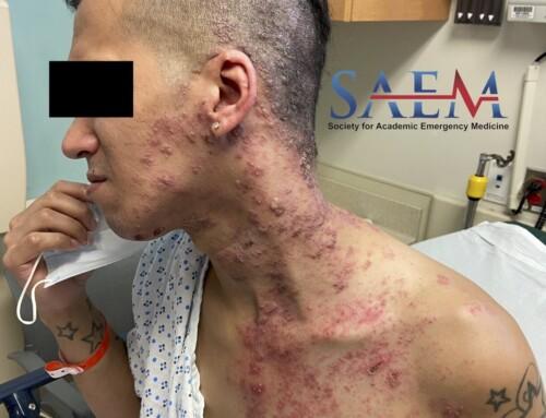 SAEM Clinical Image Series: A Rapidly Spreading Rash
