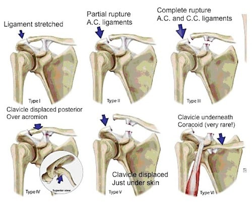 Image result for ac joint sprains grades