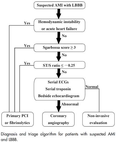 AMI & LBBB Algorithm 2