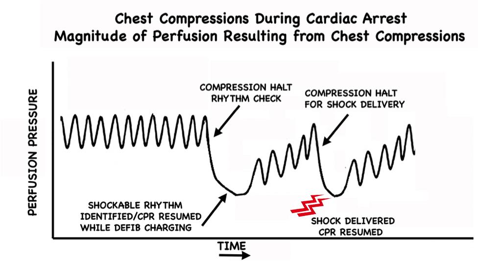 Pre-Charge the Defibrillator figure 1