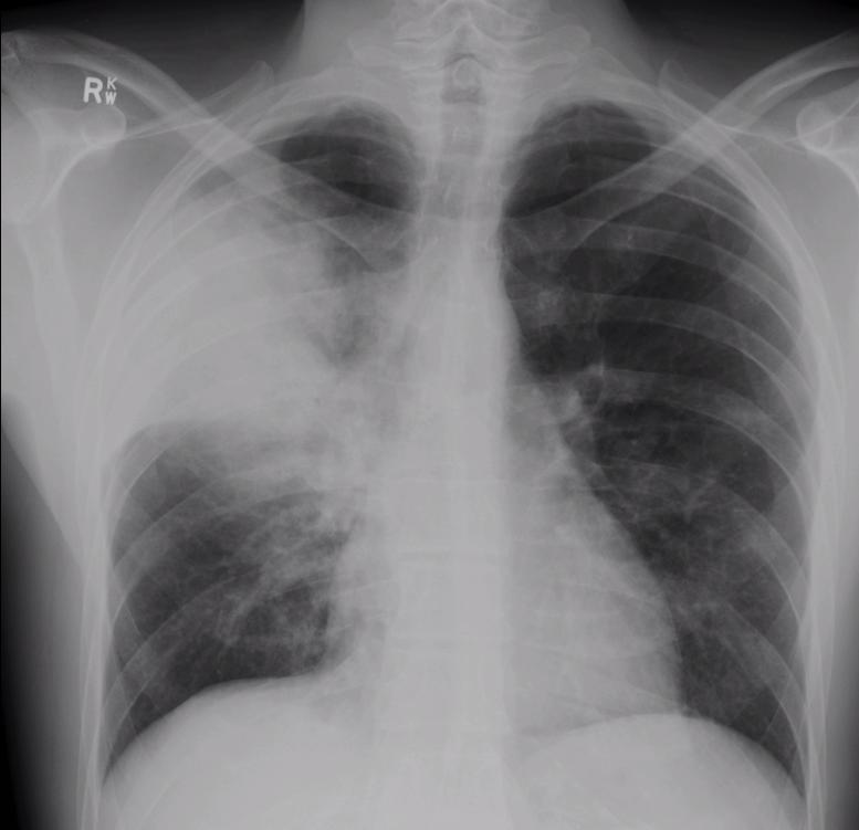 aspiration pneumonia treatment guidelines 2014