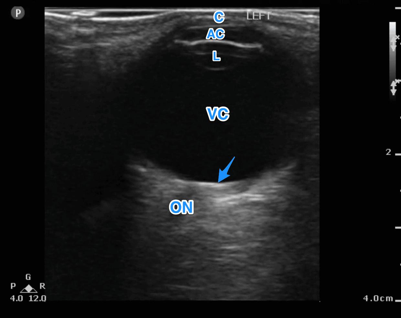 Normal Eye Anatomy Ultrasound - ALiEM