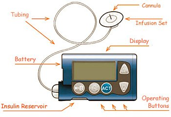 insulin pumps understanding them and their complications