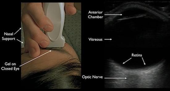 Ocular Ultrasound: Retinal Detachment and Posterior ...