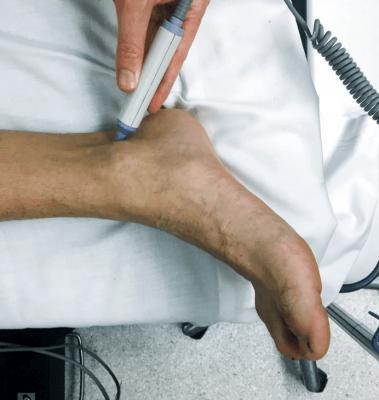 ultrasound for pedal pulse PT