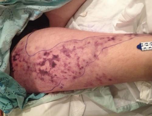 Diagnose on Sight: Swollen Leg