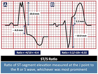 ST-S Ratio 2