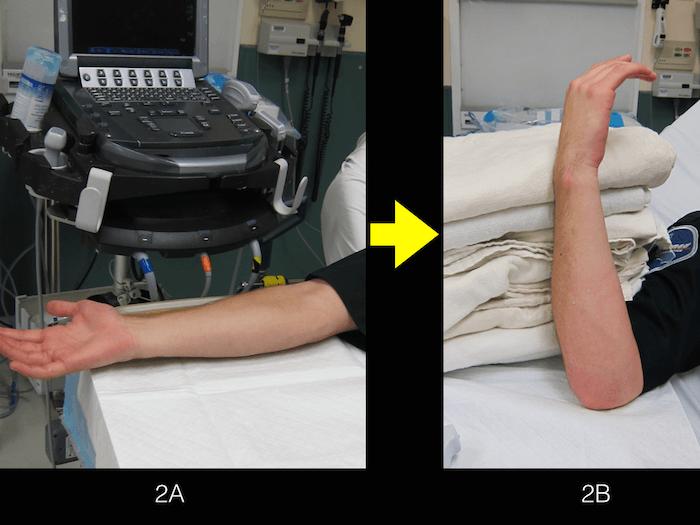 Ultrasound Ulnar Nerve 2