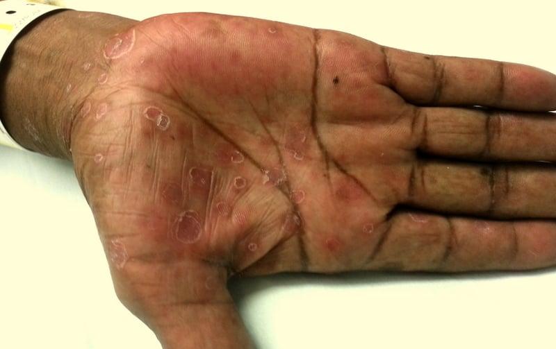 palmar rash #11