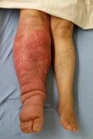 unilateral leg swelling